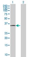 Western blot - CYB5R1 antibody (ab67436)