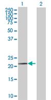 Western blot - UFC1 antibody (ab67462)