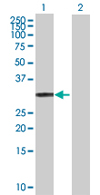 Western blot - ECHDC1 antibody (ab67463)