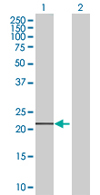 Western blot - C9orf95 antibody (ab67464)