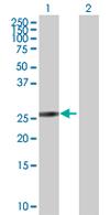 Western blot - HSD17B14 antibody (ab67465)