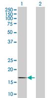 Western blot - MPV17 antibody (ab67466)