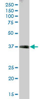 Western blot - Transaldolase 1 antibody (ab67467)