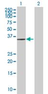 Western blot - AIMP2/p38 antibody (ab67471)