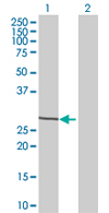 Western blot - NTAN1 antibody (ab67472)