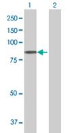 Western blot - PLOD3 antibody (ab67474)