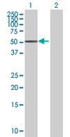 Western blot - B4GALT3 antibody (ab67476)