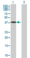 Western blot - Syntaxin 18 antibody (ab67477)