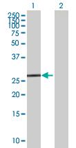 Western blot - TTC33 antibody (ab67513)