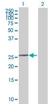 Western blot - RPP40 antibody (ab67517)