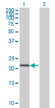 Western blot - RPL10L antibody (ab67518)
