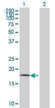 Western blot - FMO9P antibody (ab67520)