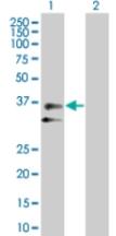 Western blot - Peptidase inhibitor 16 antibody (ab67521)