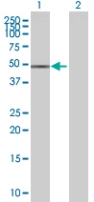 Western blot - ZNF776 antibody (ab67522)
