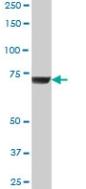 Western blot - GBE1 antibody (ab67523)