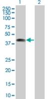 Western blot - ZNF187 antibody (ab67524)