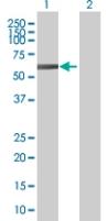 Western blot - KLHL2 antibody (ab67525)