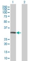 Western blot - CYB5R3 antibody (ab67526)