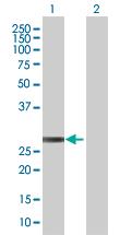 Western blot - ETHE1 antibody (ab67528)