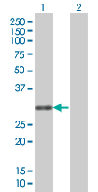 Western blot - SCML1 antibody (ab67531)