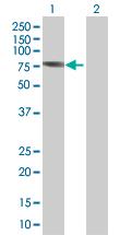 Western blot - ANKS1A antibody (ab67533)