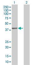 Western blot - TWF2 antibody (ab67534)