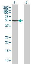 Western blot - UGT1A9 antibody (ab67535)