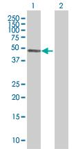 Western blot - IGSF21 antibody (ab67537)