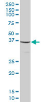 Western blot - Mitocondrial Translational Initiation Factor 3 antibody (ab67540)