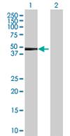 Western blot - LYAR antibody (ab67541)