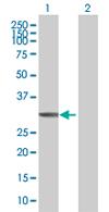 Western blot - CAPZA3 antibody (ab67543)