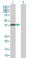 Western blot - FGD6 antibody (ab67547)