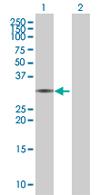 Western blot - FRMPD2 antibody (ab67552)