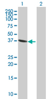 Western blot - FMNL3 antibody (ab67553)
