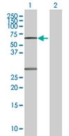 Western blot - ZNF238 antibody (ab67560)