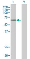 Western blot - ZNF599 antibody (ab67561)