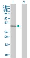 Western blot - TGIF2LX antibody (ab67563)