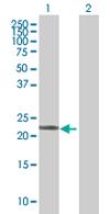 Western blot - LOC285697 antibody (ab67564)