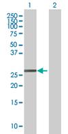 Western blot - LOC391746 antibody (ab67565)