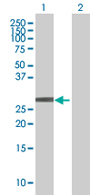 Western blot - LOC391749 antibody (ab67566)