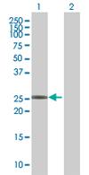 Western blot - LOC391763 antibody (ab67567)