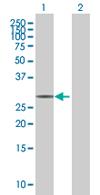 Western blot - CIP29 antibody (ab67569)