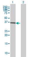 Western blot - SRPX antibody (ab67570)