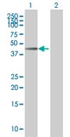 Western blot - Leupaxin antibody (ab67571)