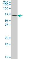 SDS-PAGE - SLC38A3 antibody (ab67574)