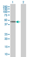 Western blot - SLC38A3 antibody (ab67574)