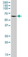Western blot - CPNE3 antibody (ab67575)