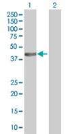 Western blot - DHPS antibody (ab67576)