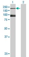 Western blot - NFKBIL2 antibody (ab67577)