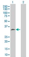 Western blot - SNX11 antibody (ab67578)